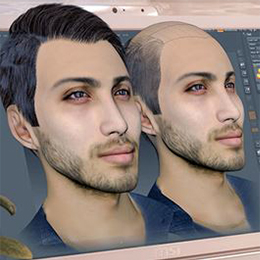 Hair transplantation by 3D scan method - TarahTeb
