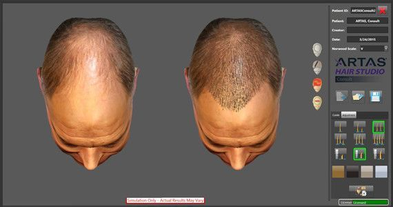 FUE Procedure Atlanta, GA - Hair Restoration Institute of Georgia